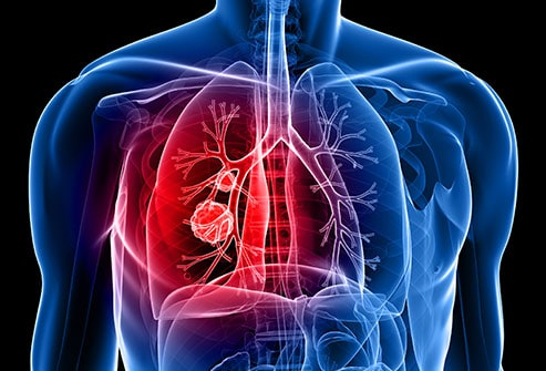 Asbestos can cause lung cancer.